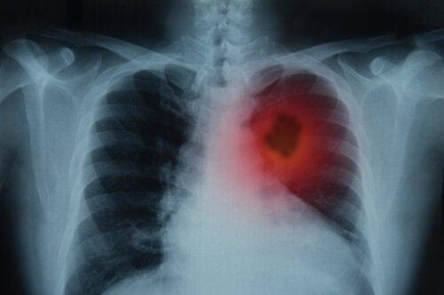 Esta imagen tiene un atributo ALT vacío; su nombre de archivo es cancer-pulmon-mujeres-500x333-1.jpg